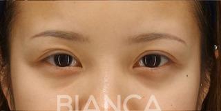 BIANCA銀座の二重全切開 抜糸時の症例写真(ビフォー)