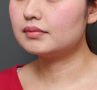 オザキクリニックLUXE新宿の顔の脂肪吸引(頬・あご下)+メーラーファット+VOVリフトダブルアームの症例写真(ビフォー)
