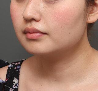 オザキクリニックLUXE新宿の顔の脂肪吸引(頬・あご下)+メーラーファット+VOVリフトダブルアームの症例写真(アフター)