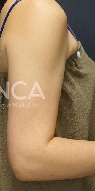 BIANCA銀座のPICO SPOTの症例写真(アフター)