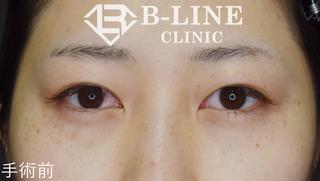 B-LINE CLINICの【眉下リフト】  1ヶ月後の症例写真(ビフォー)