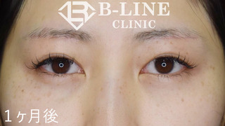 B-LINE CLINICの【眉下リフト】  1ヶ月後の症例写真(アフター)