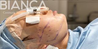 BIANCA銀座のフェイスラインを創るの症例写真(ビフォー)