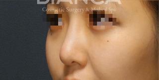 BIANCA銀座の忘れ鼻の症例写真(アフター)