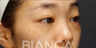 BIANCA銀座のソバカス✖️クマ 同時治療の症例写真(ビフォー)