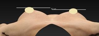 銀座3丁目・BANNAI美容クリニックのアキ―セル併用コンデンスリッチ脂肪豊胸+BANNAI式オリジナル3D注入法+ベイザー&シリンジ法の症例写真(アフター)