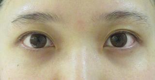 東京イセアクリニック銀座院の【ヒアルロン酸の再注入無料!】イセアの涙袋形成の症例写真(ビフォー)