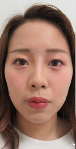 新宿TAクリニックの人中短縮+口角リフト+M字リップの症例写真(ビフォー)