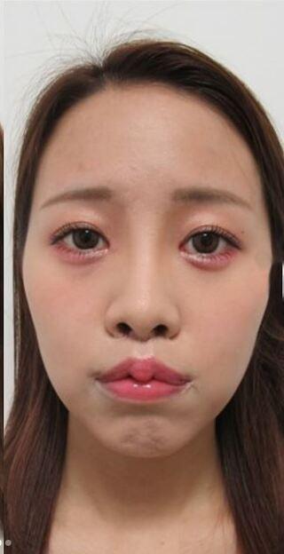新宿TAクリニックの人中短縮+口角リフト+M字リップの症例写真(アフター)