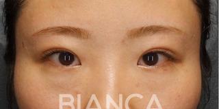 BIANCA銀座の目頭切開×目の下クマたるみ取りの症例写真(ビフォー)