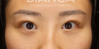 BIANCA銀座の目頭切開×目の下クマたるみ取りの症例写真(アフター)