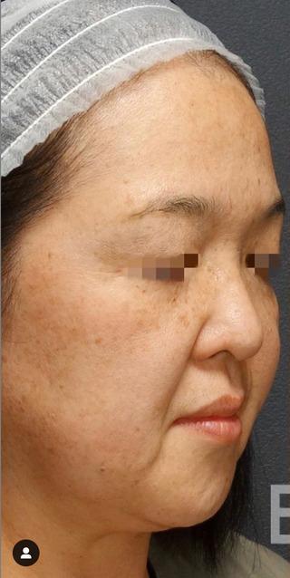 BIANCA銀座のPico Spot×ピコトーニング (PicoSure)の症例写真(ビフォー)