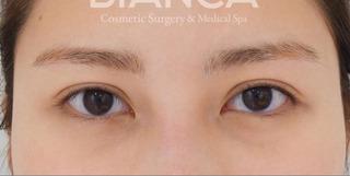 BIANCA銀座の皮膚を持ち上げ平行二重への症例写真(アフター)