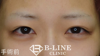 B-LINE CLINICの【切開法二重術+グラマラスライン形成】3ヶ月後【眉下リフト】 抜糸直後の症例写真(ビフォー)