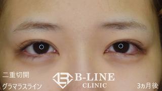 B-LINE CLINICの【切開法二重術+グラマラスライン形成】3ヶ月後【眉下リフト】 抜糸直後の症例写真(アフター)