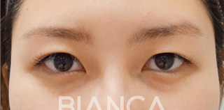 BIANCA銀座の皮膚を持ち上げ平行二重への症例写真(ビフォー)