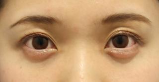 東京イセアクリニック銀座院の【ヒアルロン酸の再注入無料!】イセアの涙袋形成の症例写真(アフター)