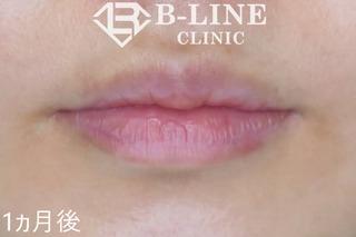 B-LINE CLINICの【ピコレーザー(ピコスポット)】の症例写真(アフター)