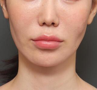 オザキクリニックLUXE新宿の顎プロテーゼ+人中短縮+口角挙上+脂肪注入+切除組織鼻先移植の症例写真(ビフォー)