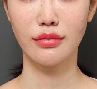 オザキクリニックLUXE新宿の顎プロテーゼ+人中短縮+口角挙上+脂肪注入+切除組織鼻先移植の症例写真(アフター)