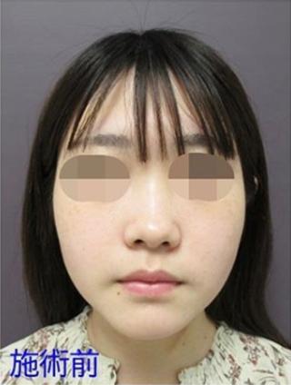 新宿TAクリニックのバッカルファット除去+TAC式ツヤ肌コラーゲンリフトの症例写真(ビフォー)