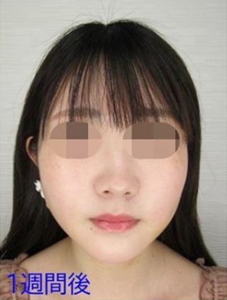 新宿TAクリニックのバッカルファット除去+TAC式ツヤ肌コラーゲンリフトの症例写真(アフター)