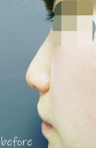 銀座TAクリニックの4Dノーズ+鼻尖縮小術(内側法)の症例写真(ビフォー)