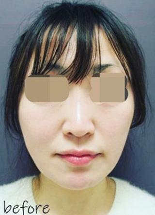 銀座TAクリニックのキツネシルエット ダイヤの症例写真(ビフォー)