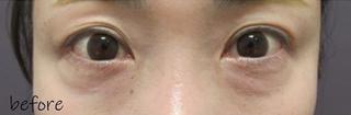 銀座TAクリニックの下眼瞼切開術の症例写真(ビフォー)