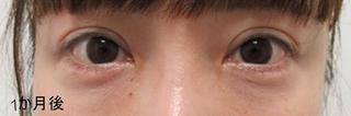 銀座TAクリニックの下眼瞼切開術の症例写真(アフター)