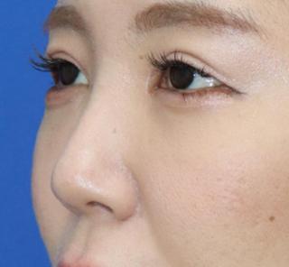 オザキクリニックLUXE新宿の【鼻整形】耳介軟骨移植(鼻翼拳上)の症例写真(ビフォー)