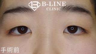 B-LINE CLINICの【二重全切開+目頭切開術(Z形成)】 手術3ヶ月後の症例写真(ビフォー)