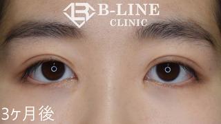 B-LINE CLINICの【二重全切開+目頭切開術(Z形成)】 手術3ヶ月後の症例写真(アフター)