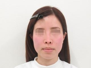 新宿TAクリニックのバッカルファット除去+TAC式ツヤ肌コラーゲンリフト 1.5ヶ月後の症例写真(ビフォー)