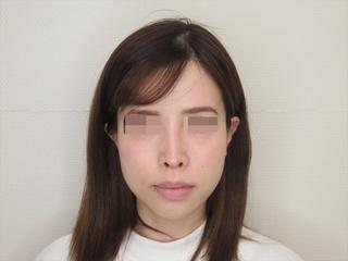 新宿TAクリニックのバッカルファット除去+TAC式ツヤ肌コラーゲンリフト 1.5ヶ月後の症例写真(アフター)