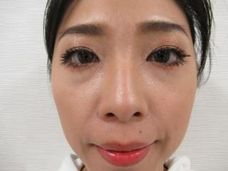 新宿TAクリニックの鼻翼縮小(内側法+外側法)+鼻孔縁挙上術 1ヶ月後の症例写真(ビフォー)