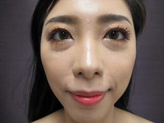 新宿TAクリニックの鼻翼縮小(内側法+外側法)+鼻孔縁挙上術 1ヶ月後の症例写真(アフター)