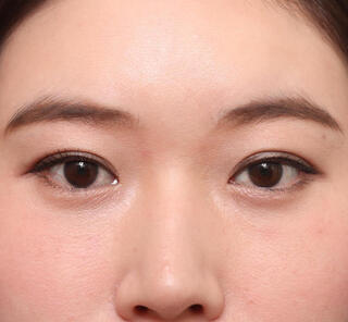オザキクリニックLUXE新宿の目頭切開+目尻切開の症例写真(ビフォー)