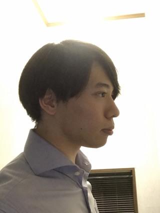 id美容外科の両顎手術,ミニVライン,頬骨横幅縮小術の症例写真(ビフォー)