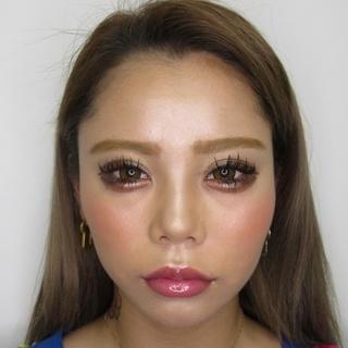 新宿TAクリニックのバッカルファット除去+ツヤ肌コラーゲンリフト 1ヶ月後の症例写真(ビフォー)