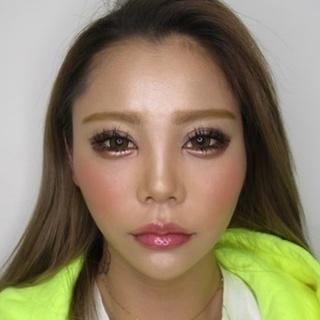 新宿TAクリニックのバッカルファット除去+ツヤ肌コラーゲンリフト 1ヶ月後の症例写真(アフター)