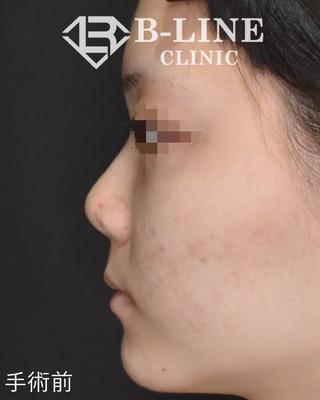 B-LINE CLINICの【BL式鼻尖形成術(耳介軟骨移植)】 手術1週間後の症例写真(ビフォー)