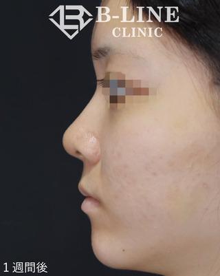 B-LINE CLINICの【BL式鼻尖形成術(耳介軟骨移植)】 手術1週間後の症例写真(アフター)