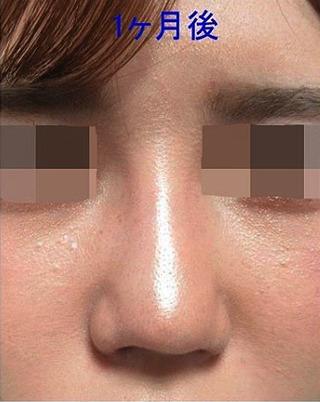 新宿TAクリニックのI型プロテーゼ+鼻翼縮小 内側法 1ヶ月後の症例写真(アフター)