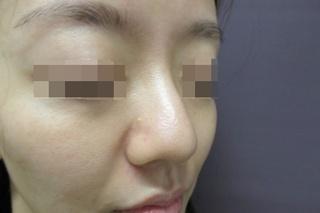 新宿TAクリニックの鼻尖縮小+鼻尖4Dノーズ 1週間後の症例写真(ビフォー)