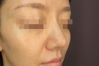 新宿TAクリニックの鼻尖縮小+鼻尖4Dノーズ 1週間後の症例写真(アフター)