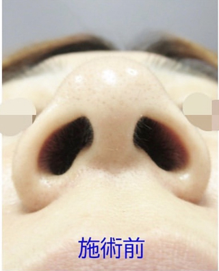 新宿TAクリニックの鼻翼縮小(内側法+外側法)、鼻尖縮小、鼻尖4Dノーズ、鼻尖脱脂 2ヶ月後の症例写真(ビフォー)