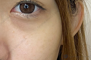 Original Beauty Clinic GINZAのピコスポットの症例写真(アフター)