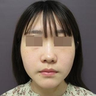 新宿TAクリニックのバッカルファット除去+ツヤ肌コラーゲンリフト 左右4本ずつ 1ヶ月後の症例写真(ビフォー)