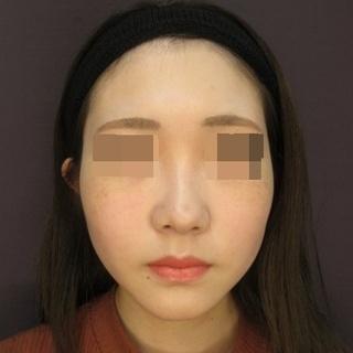 新宿TAクリニックのバッカルファット除去+ツヤ肌コラーゲンリフト 左右4本ずつ 1ヶ月後の症例写真(アフター)
